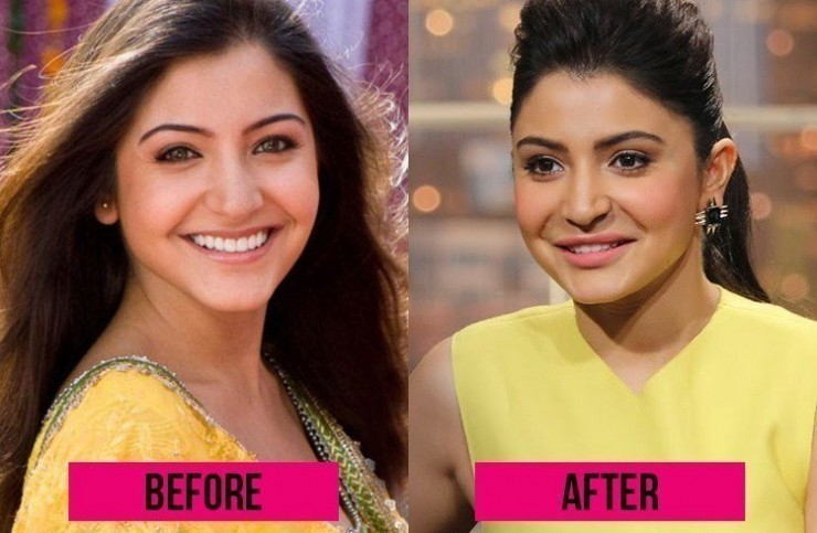 Anushka Sharma Photo Before and After Plastic Surgery