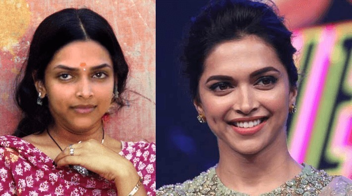 Deepika Padukone Picture Before and After Plastic Surgery