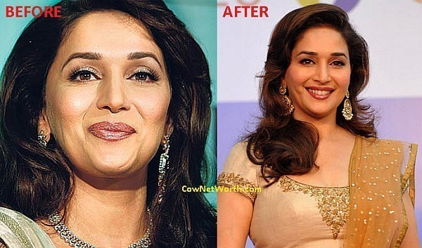 Madhuri Dixit Plastic Surgery Picture Before and After