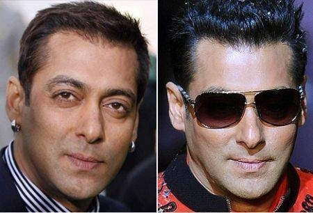 Salman Khan Before and After Plastic Surgery